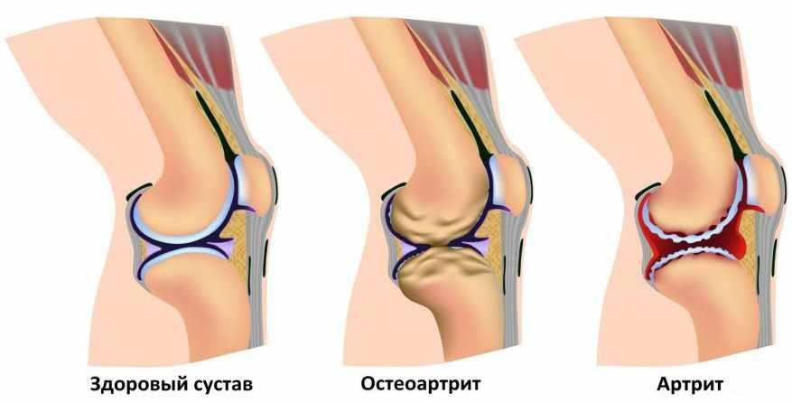 Артрит: Лечение, Профилактика, Диагностика артрита суставов в ...