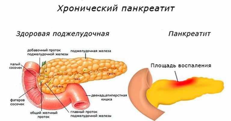 Как и чем лечить хронический панкреатит — Город Тула