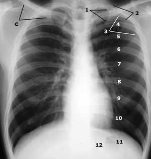 Лечение проблем с позвоночником - рентген грудной клетки