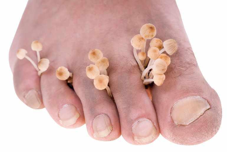 Микозы стопы ног